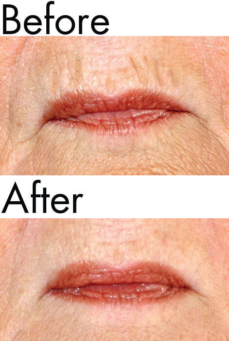Dermelect® Smooth Upper Lip Anti-Aging Treatment - View 2