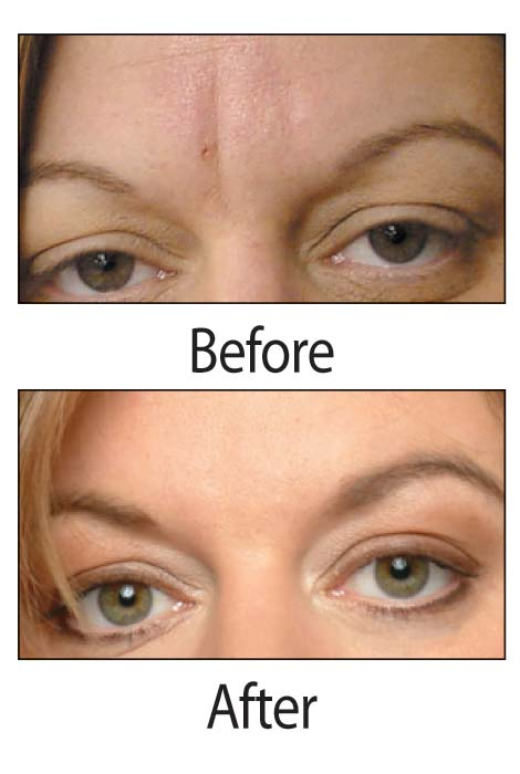 Frownies® Forehead And Between Eyes Facial Patches - View 2
