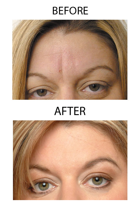 Frownies® Forehead And Between Eyes Facial Patches - View 5