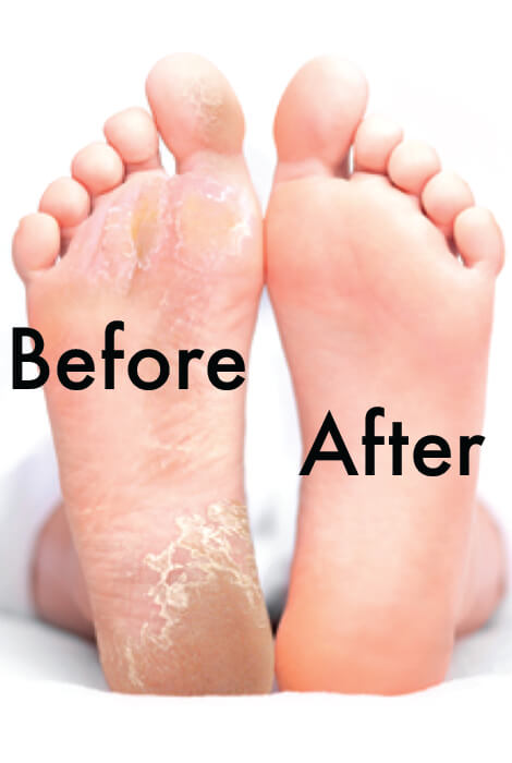 Baby Foot Exfoliation Peel - View 2