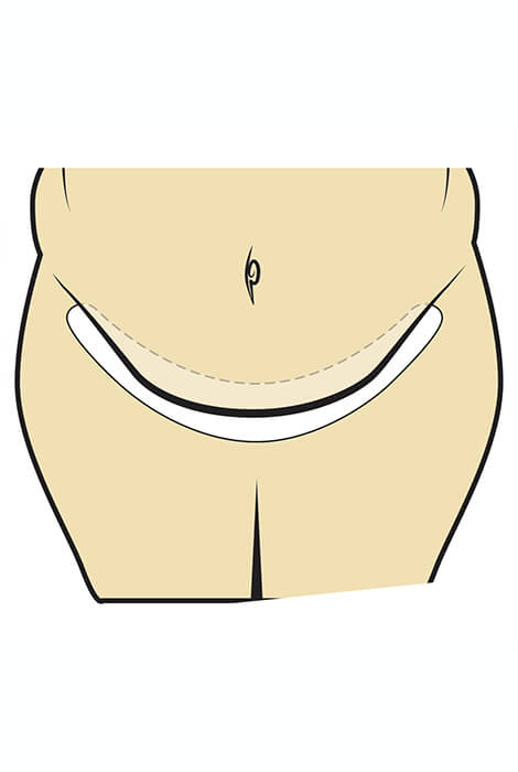 Tummy Liners Set of 3 - View 2