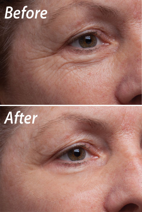 Bi-Matrix™ 60-Second Wrinkle Eraser & Night Cream - View 2