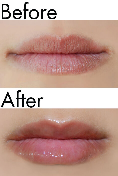 Dermelect® Smooth Lip Volumizer - View 3