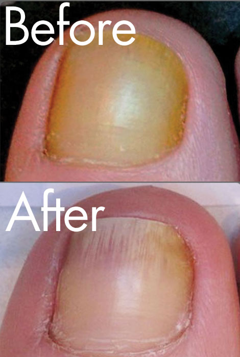 Funginix® Nail Fungus Treatment - View 2