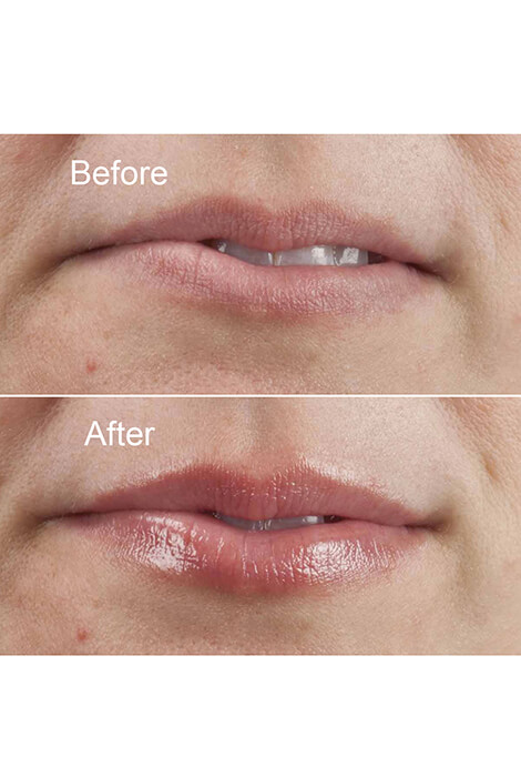 Beautyful™ Instant Lip Plumper - View 3