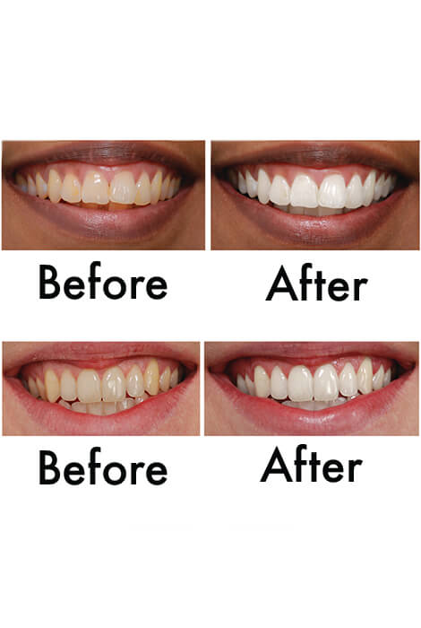 Supersmile® Professional Whitening Toothpaste - View 2